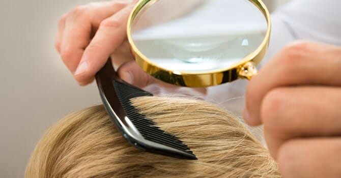 People With Alopecia Can Now Have A Peace Of Mind