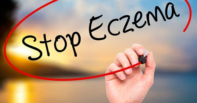 Prevent Eczema By Knowing