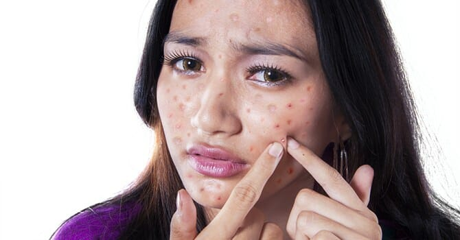 Acne Outbreaks Is One Of The Most Embarrassing Thing Ever