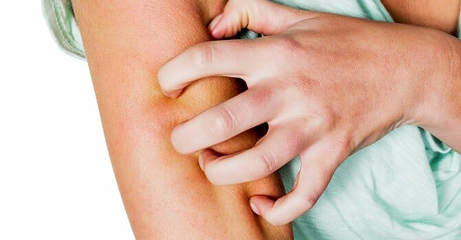 Psoriasis Is One Of The Worst Thing To Happen To Your Skin