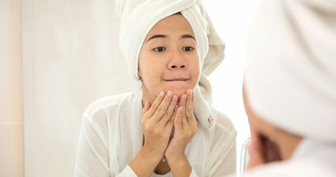 Acne Can Be Treated Through Multiple Ways