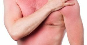 Having A Sunburn Has Never Been A Pleasant Condition