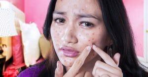 Eliminating Acne Is Very Rewarding