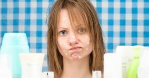 Acne Ruins Your Pretty Face