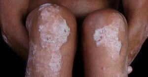 Psoriasis Is A Very Unpleasant Disease