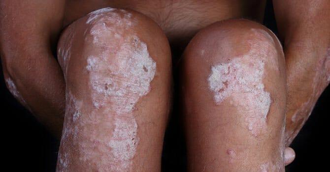 Psoriasis Is A Very Unpleasant Disease