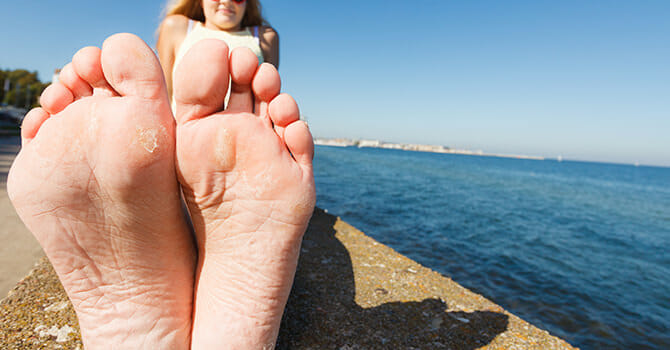 Dry Feet Ruins Your Pretty Feet