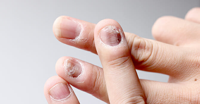 Nail Psoriasis Can Be Painful