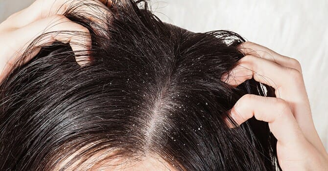 There Are Several Effective Ways To Fight Dandruff