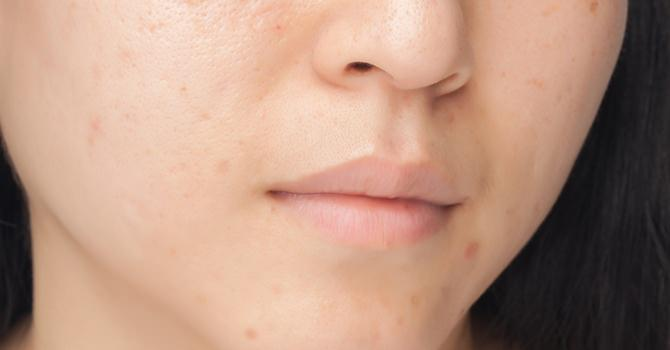 Adult Acne Is Prevalent