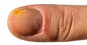 Hangnail Does Not Look Good At All