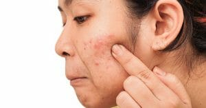 Acne and Diet Are Closely Related