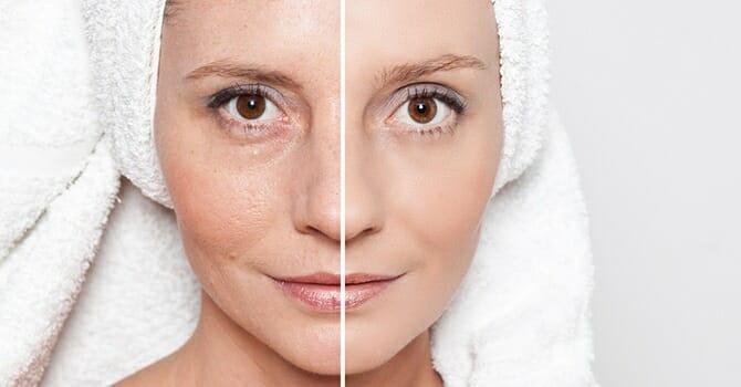 Skin Aging Has A Lots of Factors