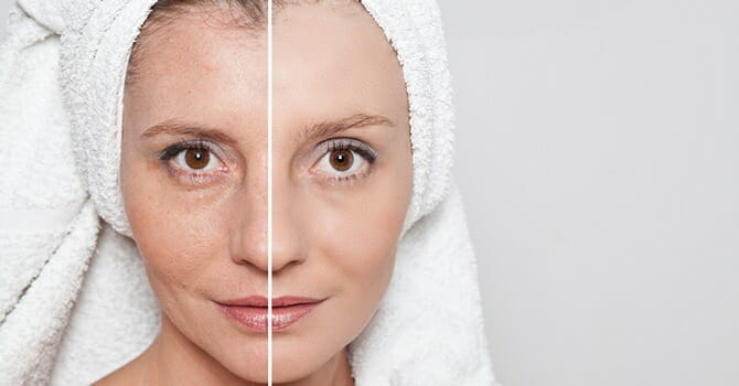 Proper Caring For Your Skin Makes It Look Younger