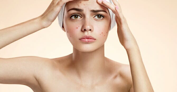 Pimples Can Be A Sign of PCOS