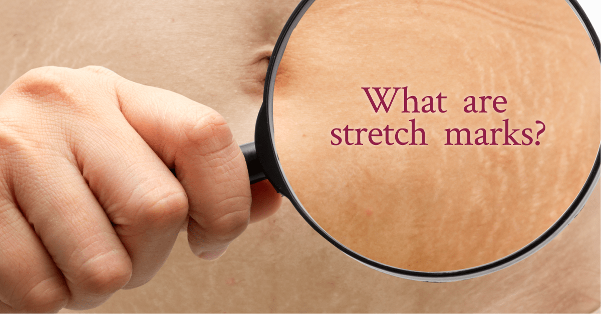 appearance of stretch marks