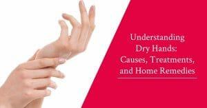 understanding dry hands