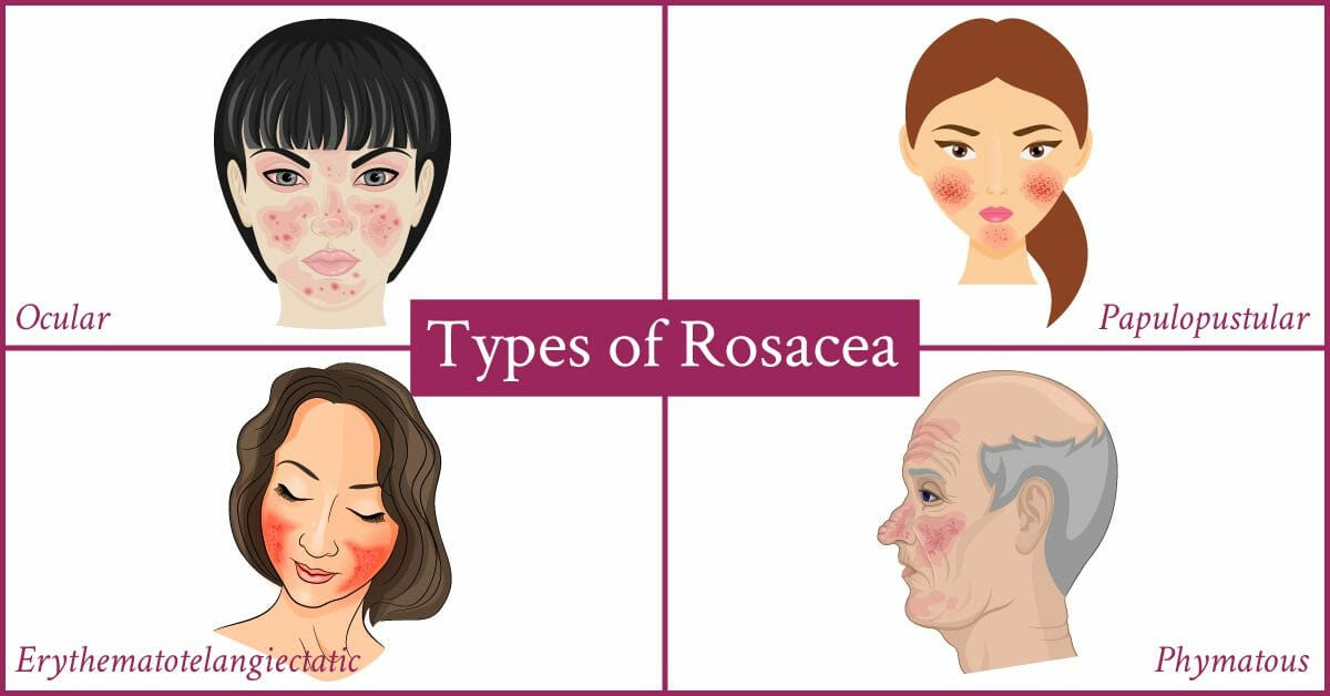 types or rosacea