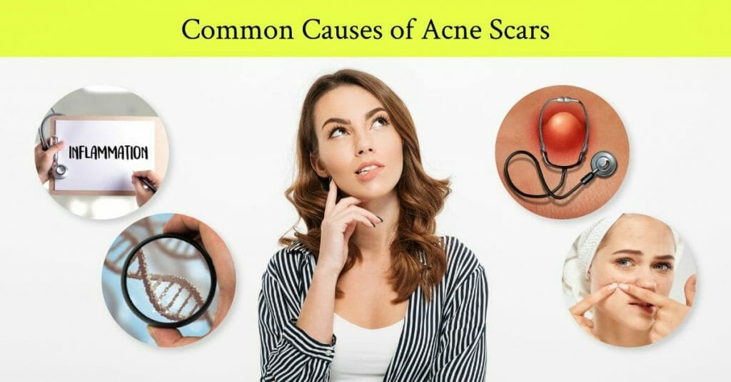 common causes of acne scars