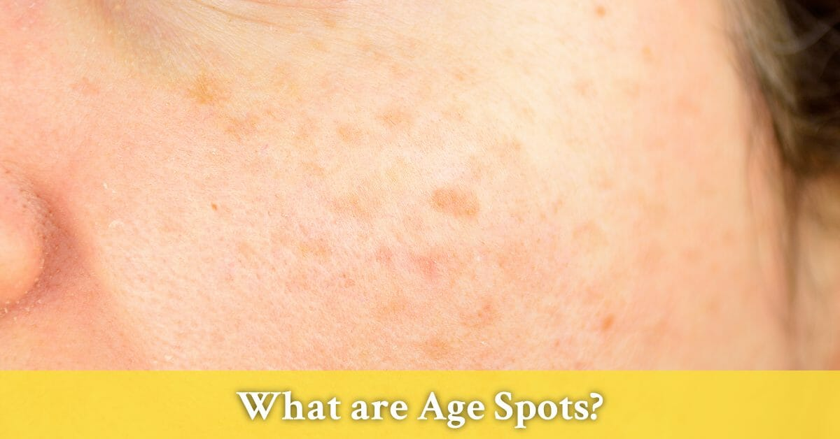 Discover The Best Natural Solutions For Age Spots