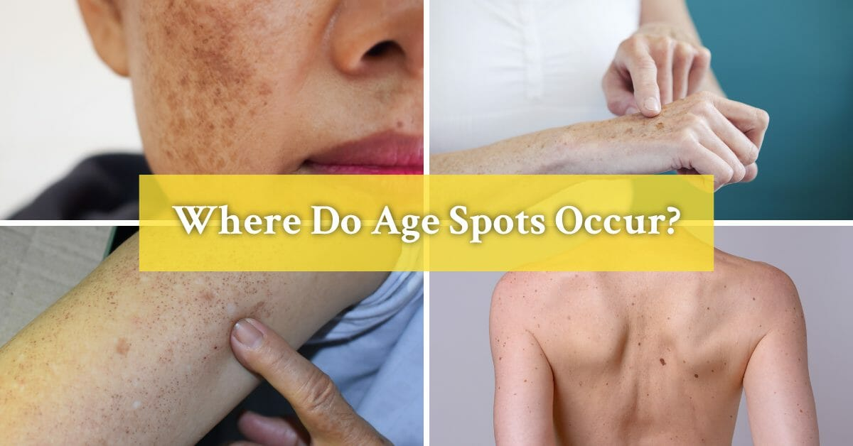different body parts with age spots