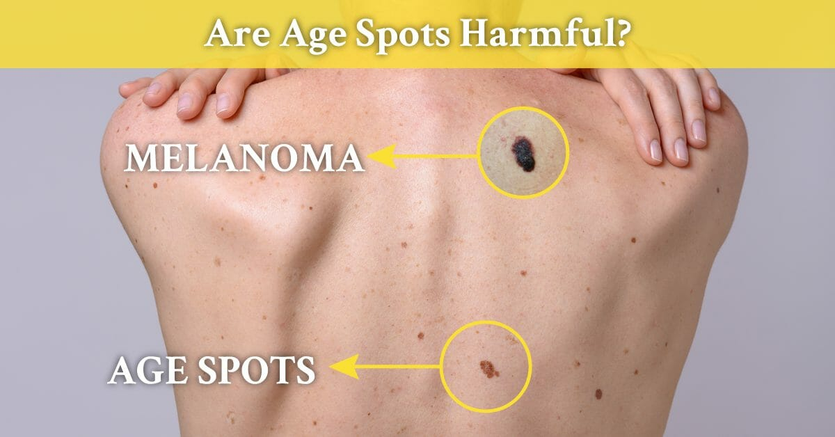 melanoma and age spots