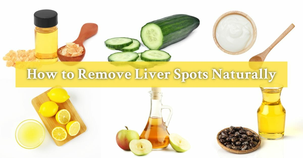 natural remedies for liver spots